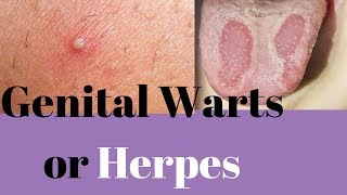 Genital Warts Or Herpes - Similarities And Differences Of Geni…