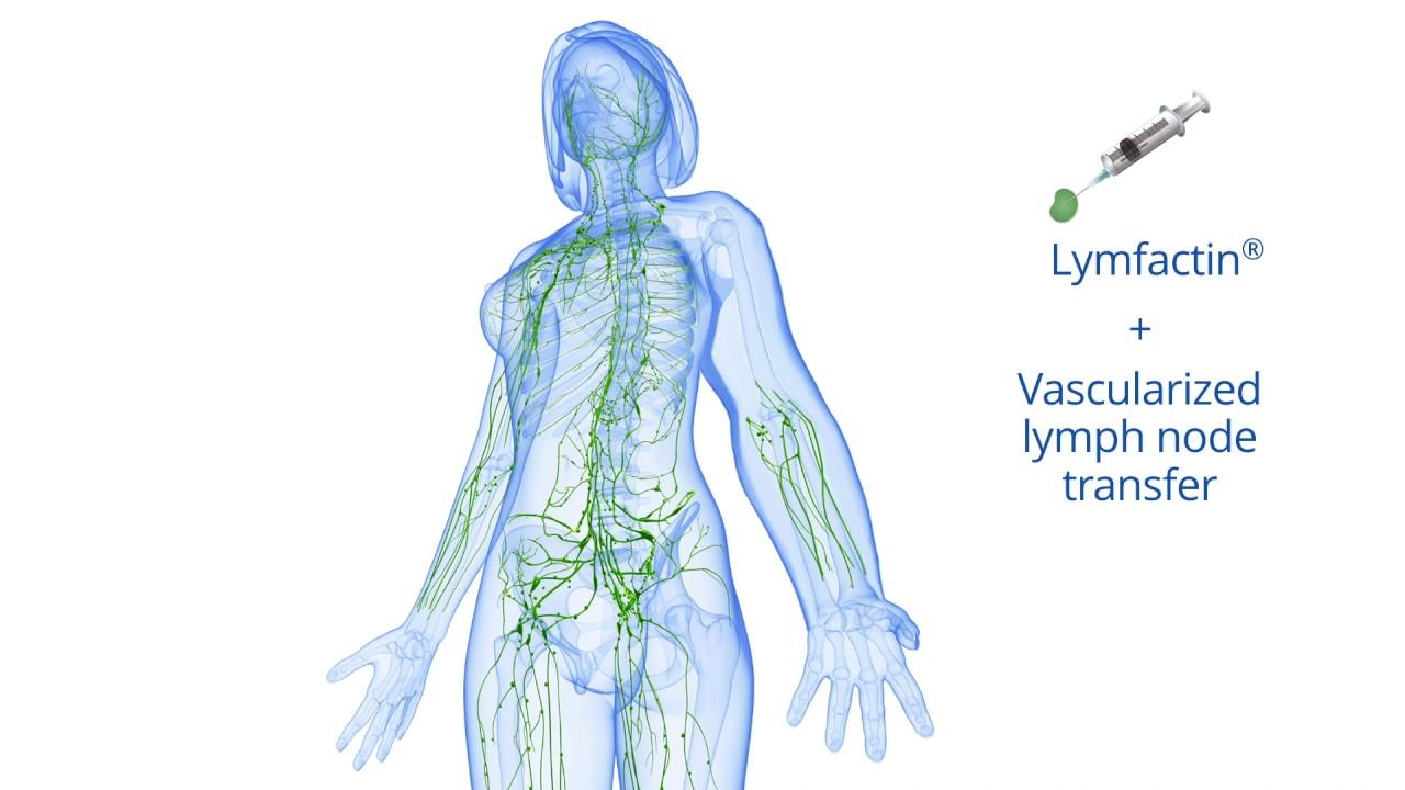 Ziemlich Lymphsystem Funktion Bilder - Menschliche Anatomie Bilder ...