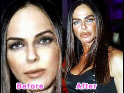 The Worst Ever Celebrity Plastic Surgery Youtube