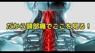 筋膜はがし 筋膜リリース だから頸部痛でここを見る!