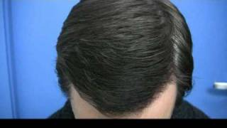 Hair Transplant by Dr Hasson - 3140 Grafts - 1 Session