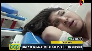 Chiclayo: joven denuncia brutal golpiza por parte de su enamorado