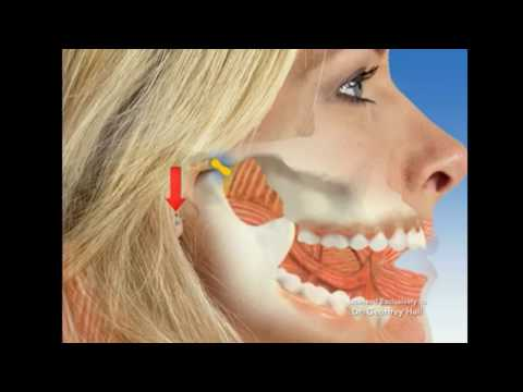 lesson-2-tinnitus-tmj-arteritis