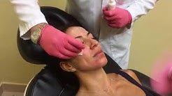 @DrArthurMiami performing facial chemical peel (Dr Arthur Desrosiers, Miami, FL)