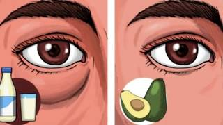 6 Foods That Can Give You Puffy Eyes and 4 That Can Fix Them!!