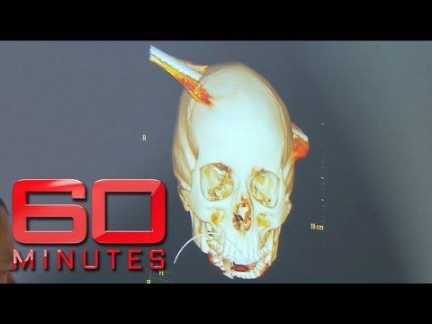 Teen survives after steel pole speared through skull   60 Minutes Australia