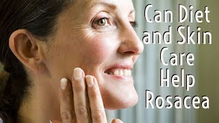 Can Diet and Skin Care Help Rosacea