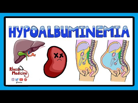 hypoalbuminemia---functions-of-albumin-in-the-body-pathophysiology-of-hypoalbuminemia