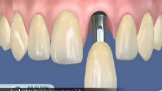 implant diş tedavisi pahalı bir tedavi midir? Diş Hekimi Cansın Özgür anlatıyor...