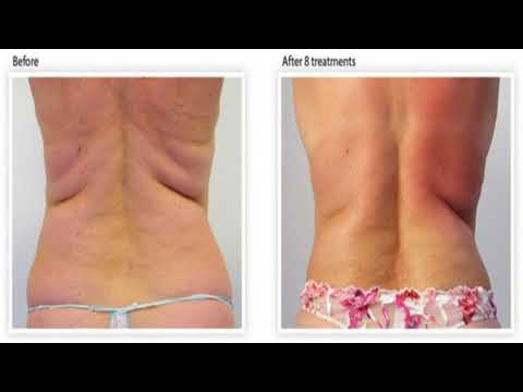Does A Raw Food Diet Get Rid of Cellulite