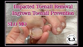 👣How to Clean Impacted Toenails to Prevent Ingrown Toenails 👣