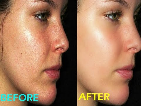MOST USEFUL TIPS=CLEAN A FACE AND MAKE IT BEAUTIFUL WITH PHOTOSHOP