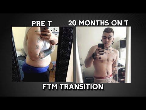 20 MOIS SOUS T + Ma transition avant/après - Ethan FTM