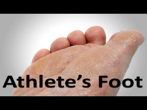 Athlete's Foot Fungus Cure in 3 Minutes! **Simple Home Trick**