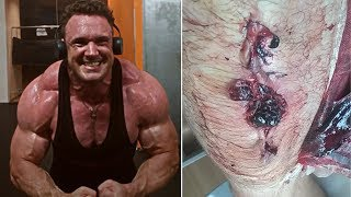 This Bodybuilder Might Lose His Leg