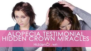 Alopecia Testimonial - Hidden Crown Miracles