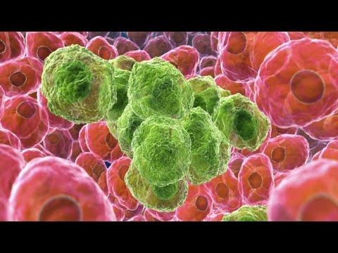 Mecanismos de evasión tumoral. Ponencia del Dr. Peter Taylor U1 L3