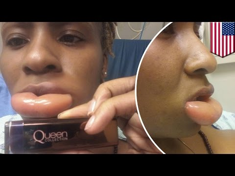 Allergy to makeup: woman rushed to ER with swollen lip after using CoverGirl lipstick – TomoNews