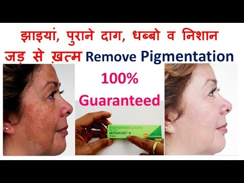 Betnovate-N Cream झाइयां पुराने दाग-धब्बो व निशान को जड़ से ख़त्म करने के नुस्खे,Remove Pigmentation