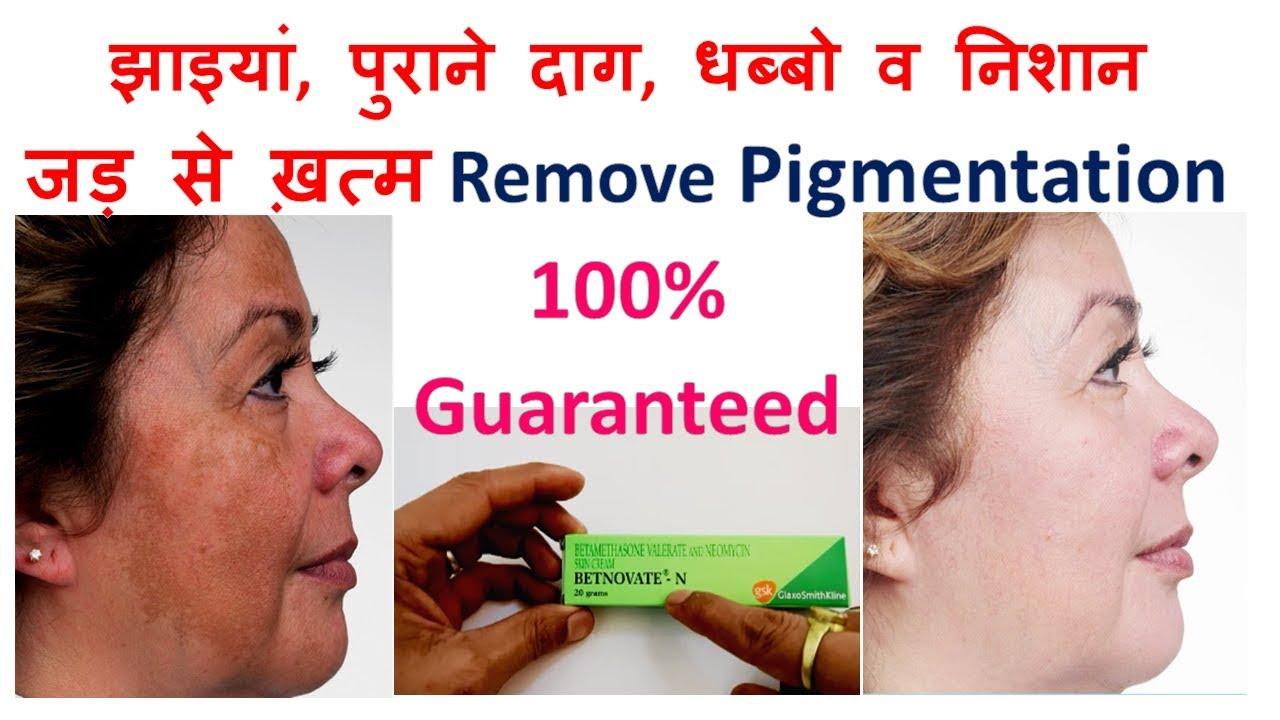 – Jhaiya Hatane Ke Best Creams – Wrinkle Removal Creams in Hindi