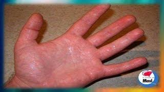 Porque sudan las manos y como evitarlo -  Manos sudorosas o hiperhidrosis palmar