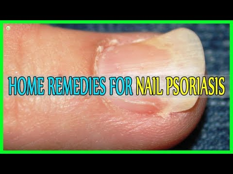 best-home-remedies-for-nail-psoriasis!