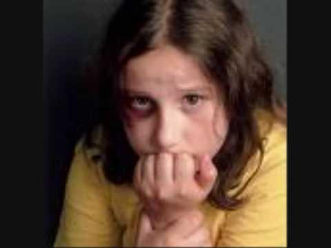 child abuse Warning shocking pictures!!!