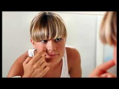 Как убрать пигментные пятна на лице? 4 современных способа