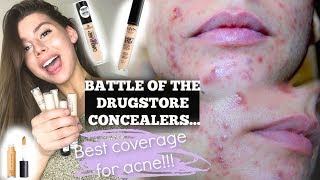 THE BEST ACNE COVERAGE CONCEALER IN THE DRUGSTORE, the winner is... || NYX, Elf, Essence, Covergirl
