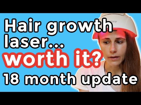 irestore-hair-growth-laser-18-month-update.-is-it-worth-it? -dr-dray