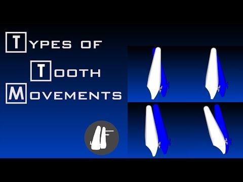 Types Of Tooth Movement   Essential Biomechanics