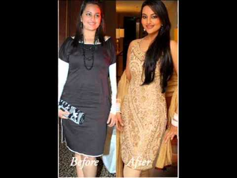 Sonakshi Sinha Before And After Youtube