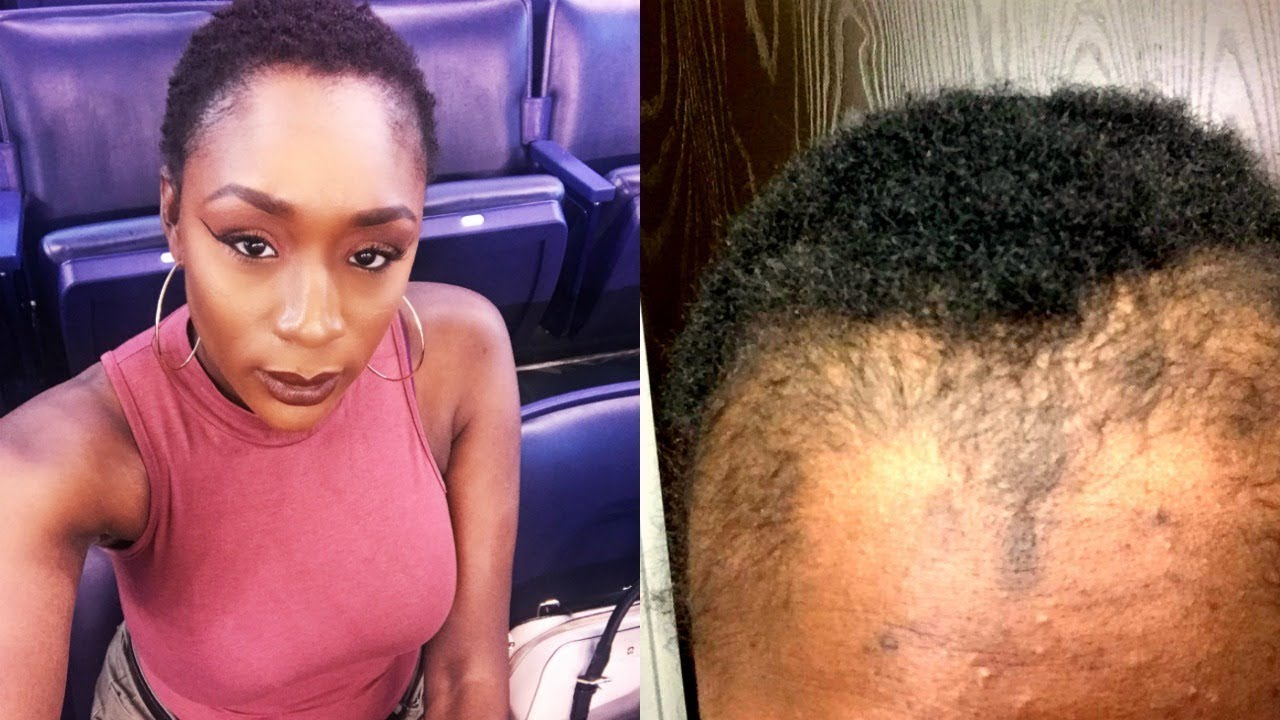 natural hair journey + traction alopecia | i set my hair on fire