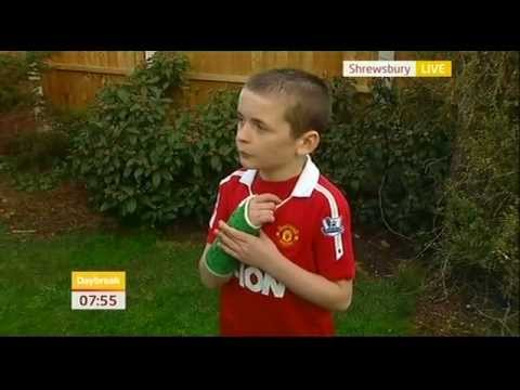 Jamie Thomas Wayne Rooney Broke My Arm Daybreak