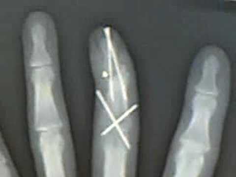 flu's finger 1