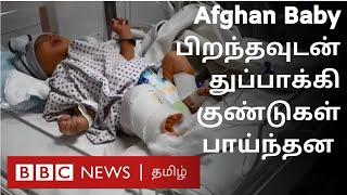 Afghan Baby Attack   பிறந்த சில நிமிடங்களில் சுடப்பட்ட குழந்தை   அமினாவின் கதை