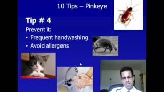 Pink Eye - 10 Tips To Identify, Prevent, and Treat Conjunctivitis