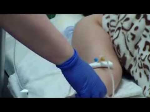 Озонотерапия внутривенно с физиологическим раствором