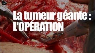 tumeur géante : l'opération
