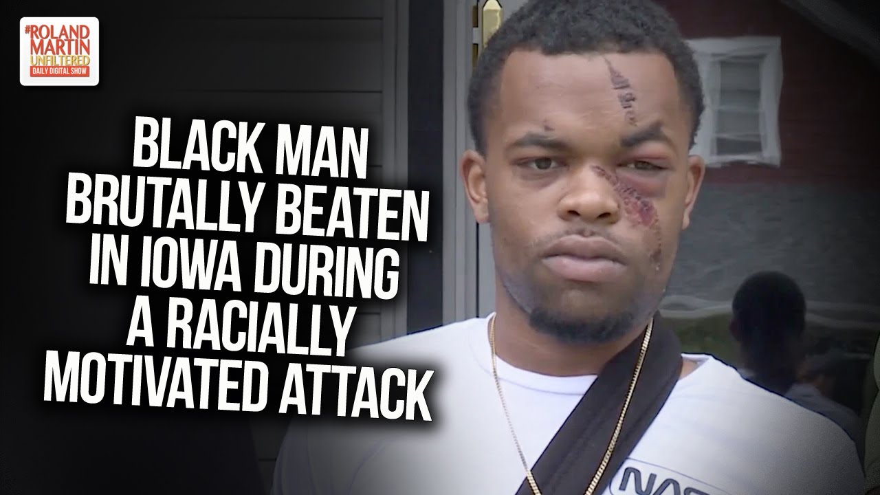 Black Man Brutally Beaten In Iowa During A Racially Motivated Attack