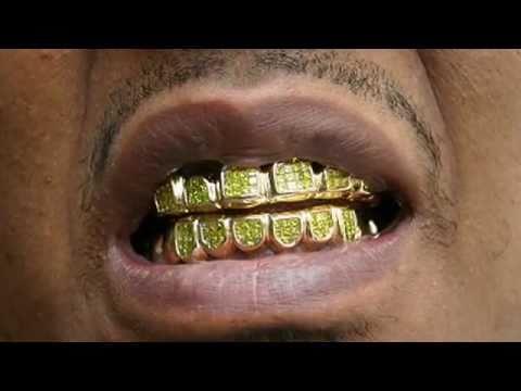 Grills, Gold, Diamonds, Accessories (Beauty & Grooming Guru)