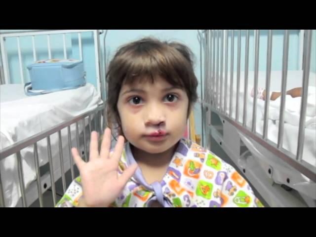 Djevojčica sa deformacijom po prvi put je ugledala svoj osmijeh, a njena reakcija će vam rastopiti vaše srce!