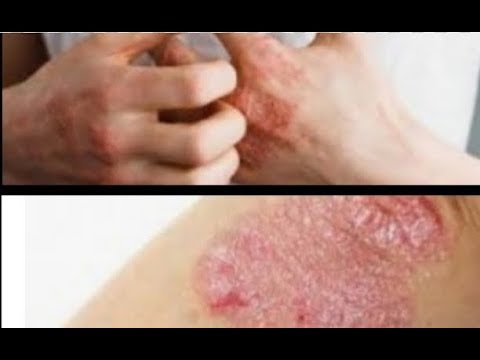 How To Treat Eczema Naturally/ Permanent Home Remedies For Eczema