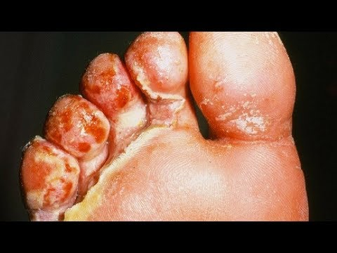 Athlete's foot Pictures HD – Signs, Symptoms, Images, Photos and Pictures of Athletes foot Fungus