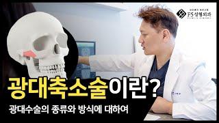 성형초보 필수시청 윤곽수술 가이드 / 광대축소술 (퀵광…