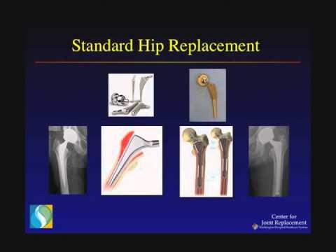 Hip Pain & Arthritis: Evaluation & Treatment