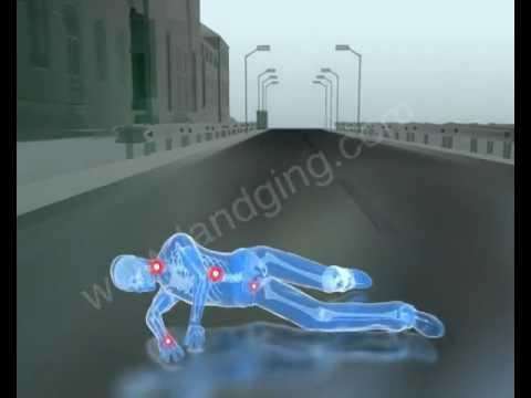 Accident Animation: Slip and Fall