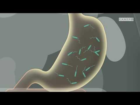 cholera vomissements vomissements