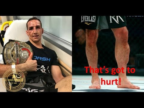 MMA: Rory MacDonald says leg injury against Douglas Lima was worst pain he's felt in a fight