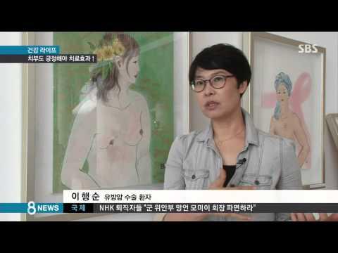 건강 이젠 당당하게.가슴 드러낸 유방암 환자들 SBS8뉴스2014.7.19